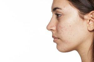 Peau : acné, irritations, démangeaisons, peau terne, taches