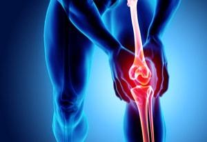 Os, ostéoporose et décalcification